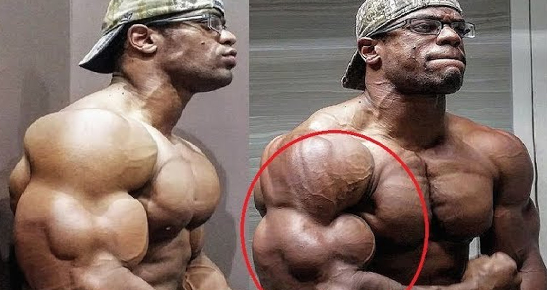 WATCH: Does Dante Franklin Have The Best Arms In Bodybuilding?