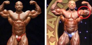 Dexter Jackson Bicep Tear Arnold Classic Australia 2018 Generation Iron