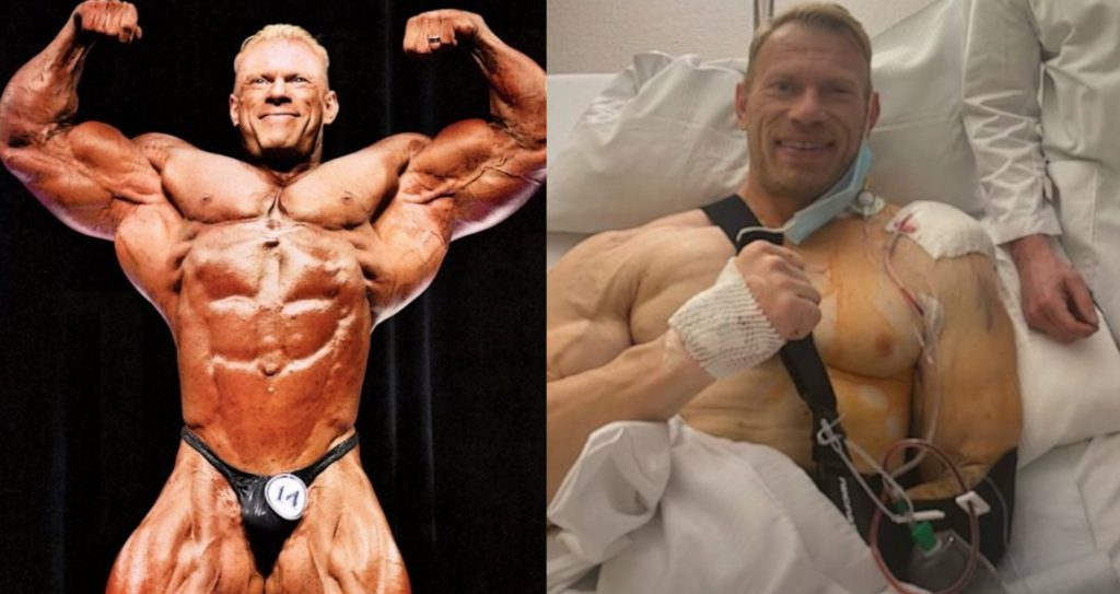 Dennis Wolf Hospitalized, Undergoes Shoulder and Bicep Surgery