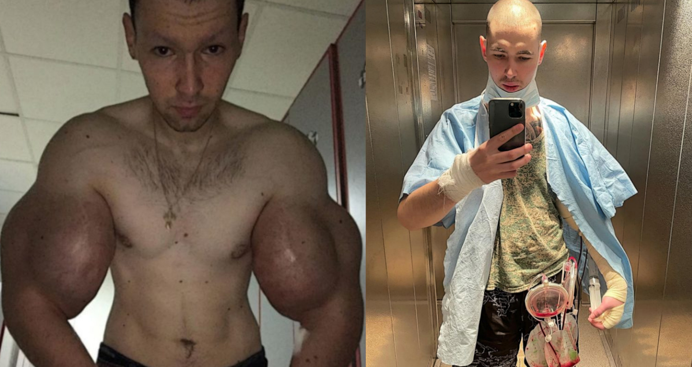 Synthol Addict Kirill Tereshin Hospitalized, Gets Fluid Drained From His  Arms