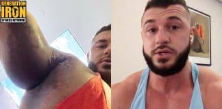 Ryan Crowley pec tear bodybuilding